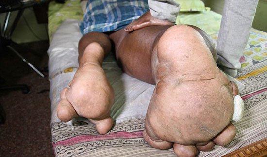 220161716639392هندى-ارون-رازاسنيج-أصيبت-ساقه-اليمنى-بتضخم-(5)