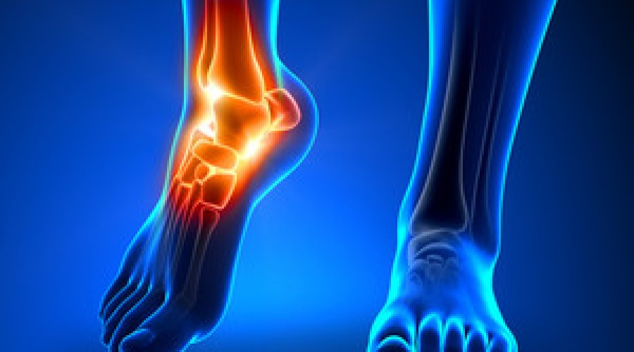 Ankle Sprains and Treatment
