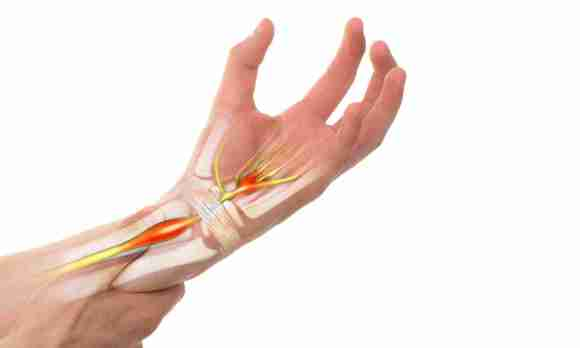 Hand Therapy Associates nerve injuries