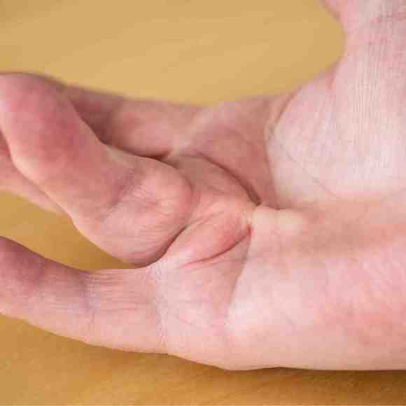 Treatment for Dupuytrens contracture by hand therapists north shore & inner west sydney