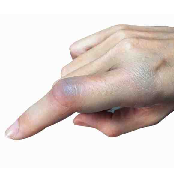 finger dislocations often require specialist physiotherapists to treat