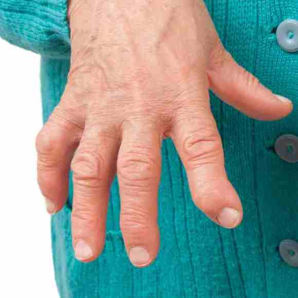 hand therapy can help arthritis in the finger tips