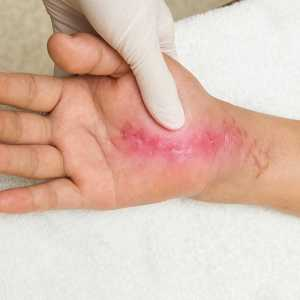 Scars can be softened with hand therapy