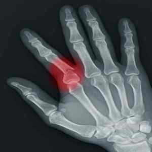 hand therapy for broken finger