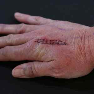 hand therapy for metacarpal fracture