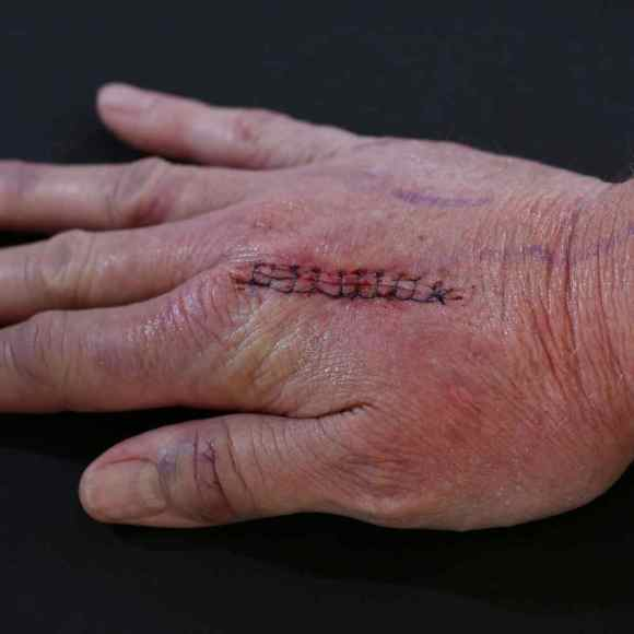 hand therapy injuries treated