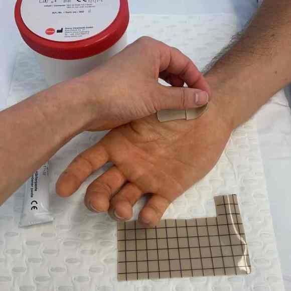 hand therapy scar management