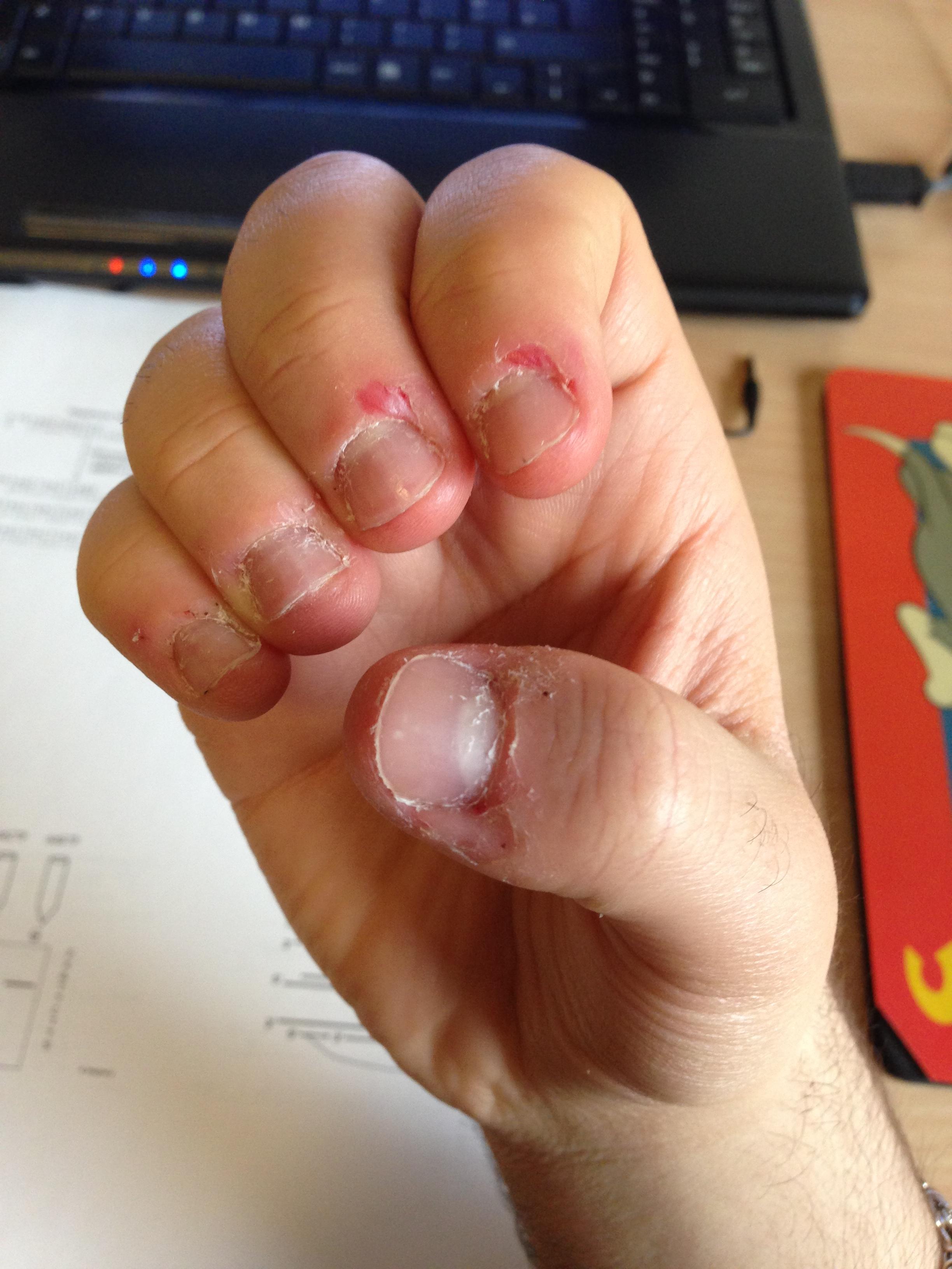 Nail Biting Daily Updates