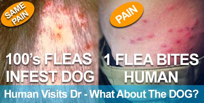 Fleas-Bite-Human-and-Dog