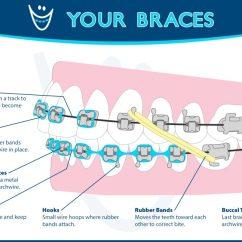 Rubber Bands Braces Diagram Lan Socket Wiring Orthodontic Glossary Of Terms Olathe Emporia Lenexa/shawnee Ky