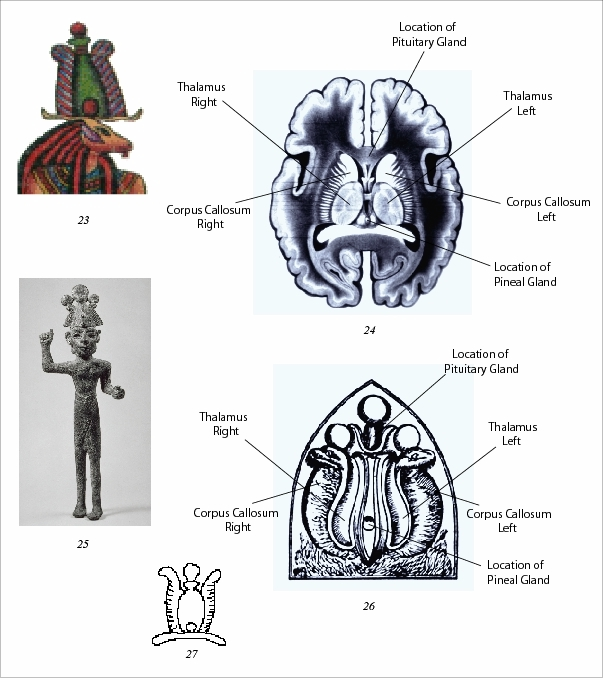 Egyptian Model of the Brain