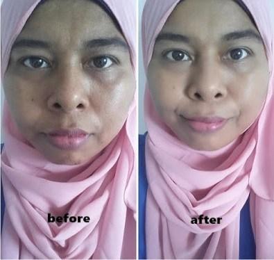 sebelum dan selepas penggunaan Aqua Whitening Cream