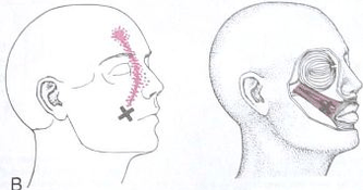 Some Common Culprits of Facial Pain