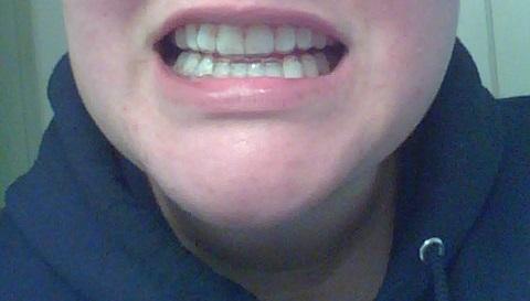 Smile Brillitant Whiten Teeth At Home