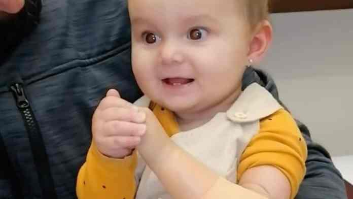 baby tries on prosthetic