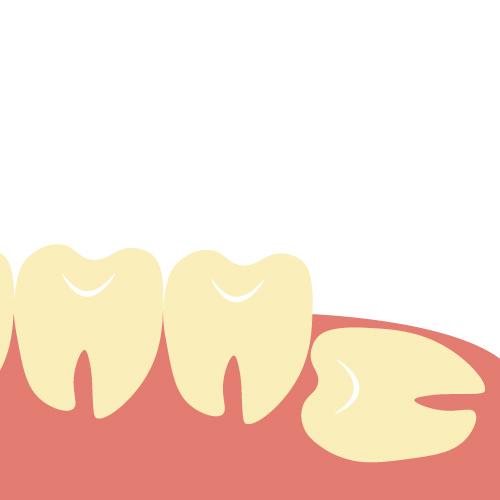 【下顎完全埋伏智歯】親知らず抜歯後5日目 痛みや腫れは、どうなった?