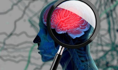 """3 възможни признака за развитие на деменция – първият """"звънец"""", който трябва да бъде забелязан навреме"""