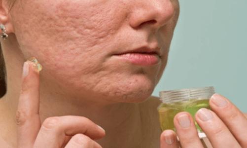 Пригответе този домашен крем за премахване на белези само за 10 секунди и подмладете кожата