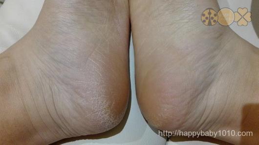 ファムズベビー 足 検証 効果 右足塗らず左足塗った