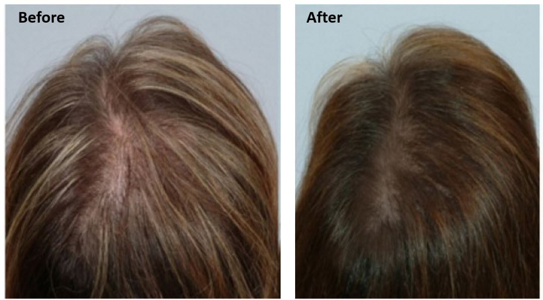Msm Results Growth Hair