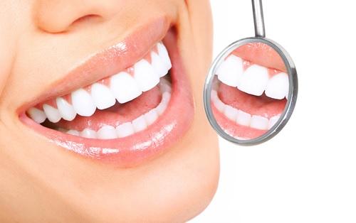 8 jednoduchých způsobů, jak efektivně předejít vzniku zubního kazu