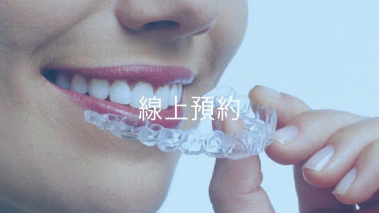 線上預約訂製牙齒美白牙托