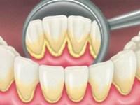 牙菌斑 Plaque