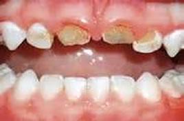 兒童牙齦疾病