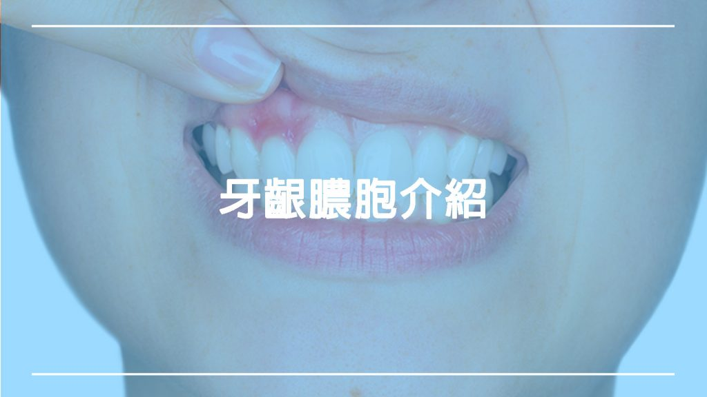 牙齦膿胞:是牙齦腫?還是細菌感染?