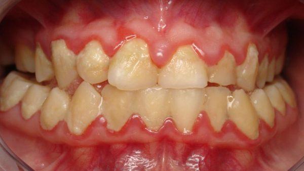 牙菌斑累積導致牙齦腫