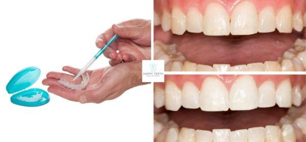 居家牙齒美白使用方法