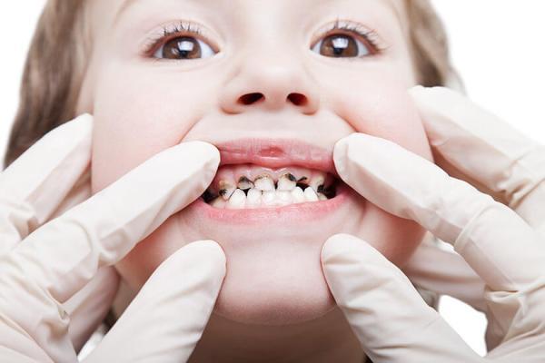 兒童預防蛀牙