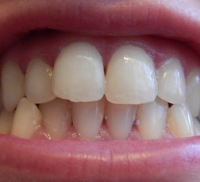 DSCN3849 600x548 - Oral-B :Traitement blancheur Perfection