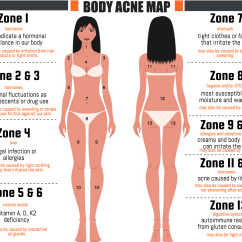What Causes Acne Diagram Boat Fuel Gauge Wiring Does Reveal About Your Health Face Map Hard Just As We Use An For Figuring Out Issues Are Giving Us Breakouts On Our Can Body Mapping To Figure