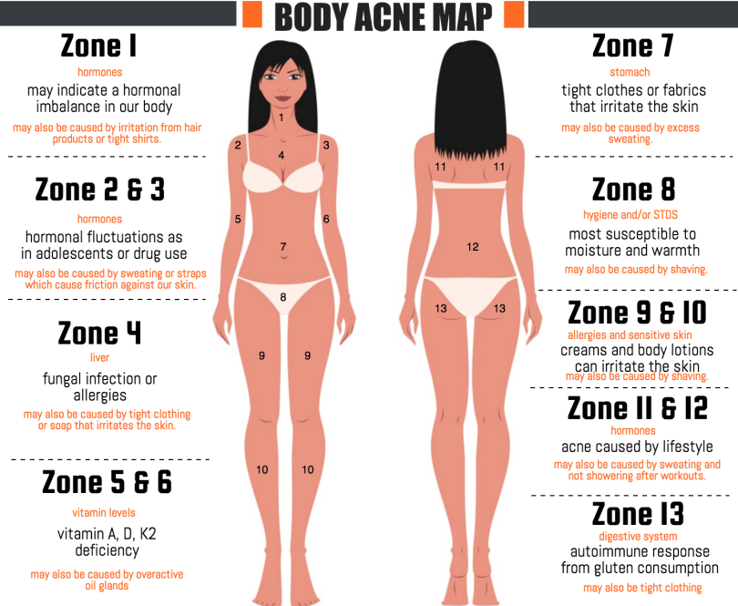 body acne map