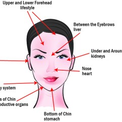 What Causes Acne Diagram Folder Tree Does Reveal About Your Health Face Map Hard Is Telling You