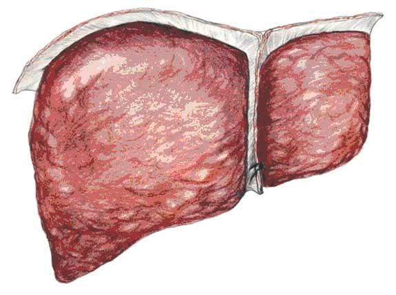 fegato grasso (steatosi)