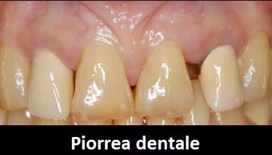 piorrea dentale