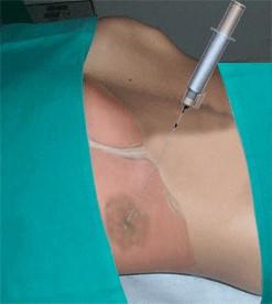 biopsia epatica