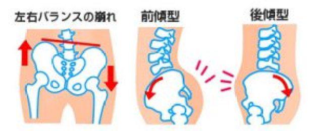骨盤のバランス