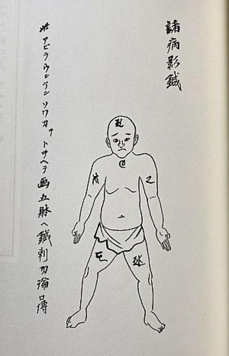 『経験鍼法』に伝わる諸病影鍼
