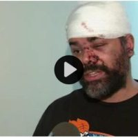 Blind Man Speaks Out After Being Slashed In East Harlem Subway Fight