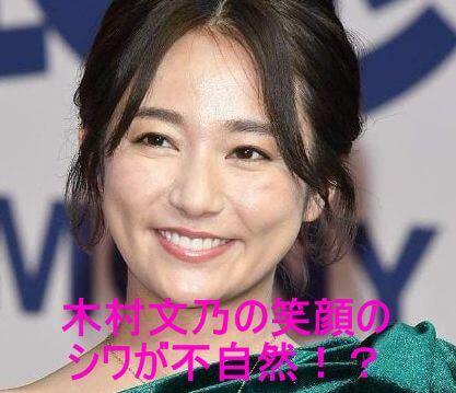 木村文乃の笑顔のシワが不自然!?