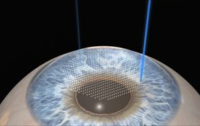 how-does-lasik-work