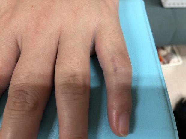 突き指?脫臼?むずかしい指の脫臼の整復(はずれた関節を ...