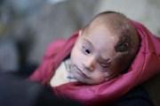 أكثر من 5 ملايين تضامنوا مع الطفل السوري كريم عبر الانترنت