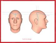 hair transplant lateral slit