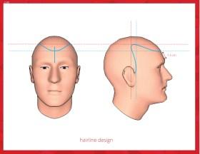 2-45-hairline-design