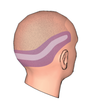 donor zone for hair transplant surgery