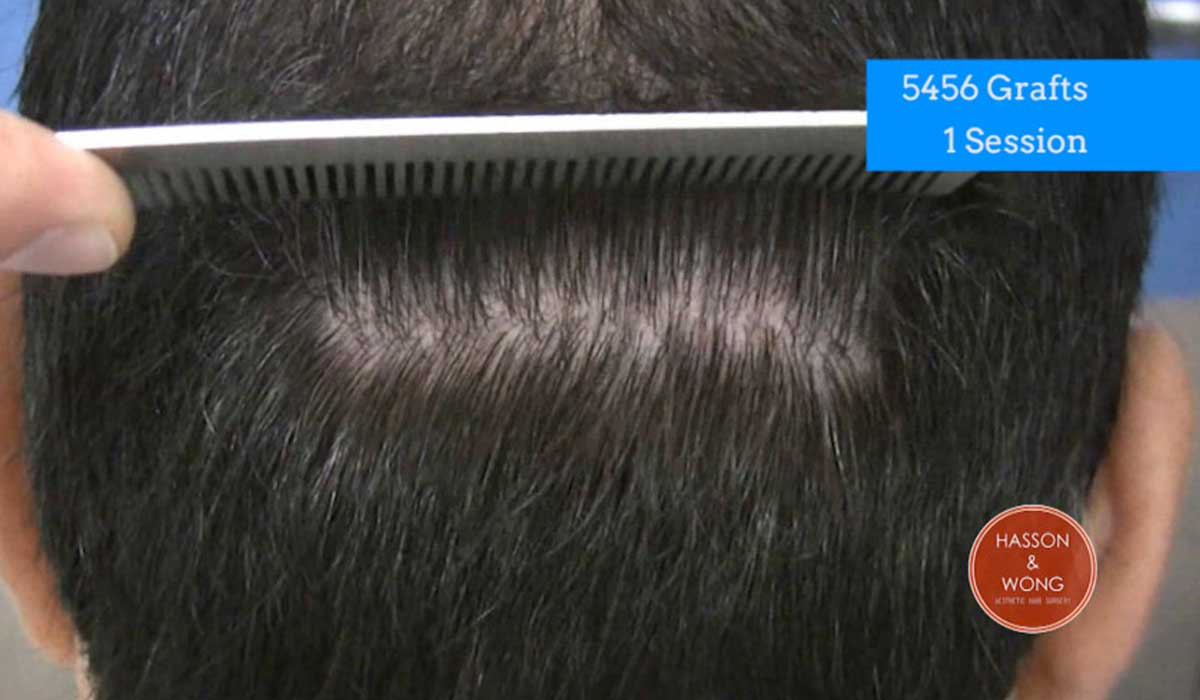 hair transplant cost and grafts